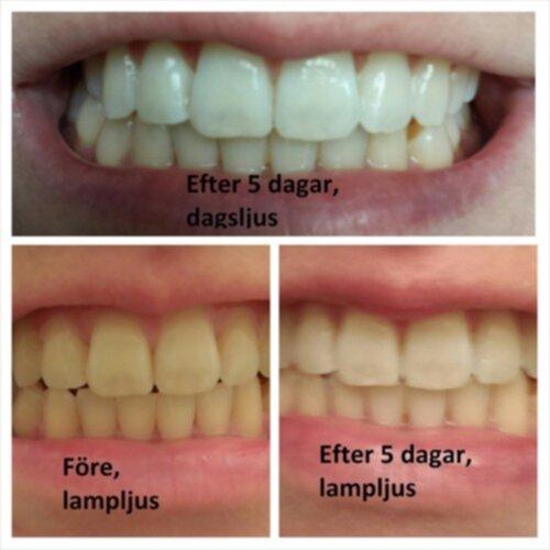 vita tänder utan blekning