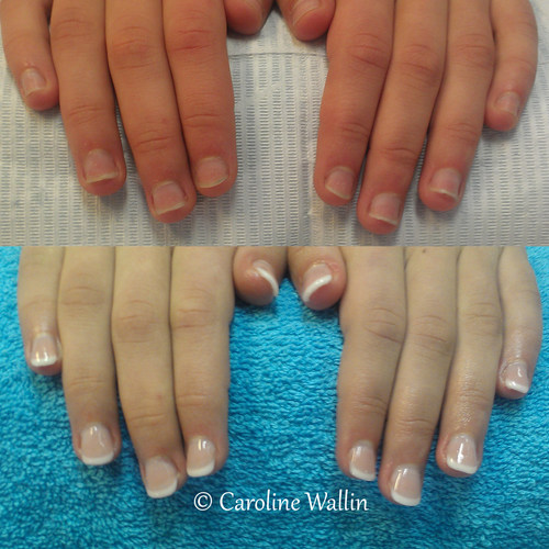 nagelbitare före efter