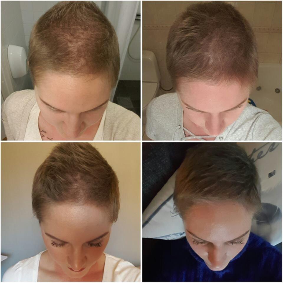 hårväxt efter cancer