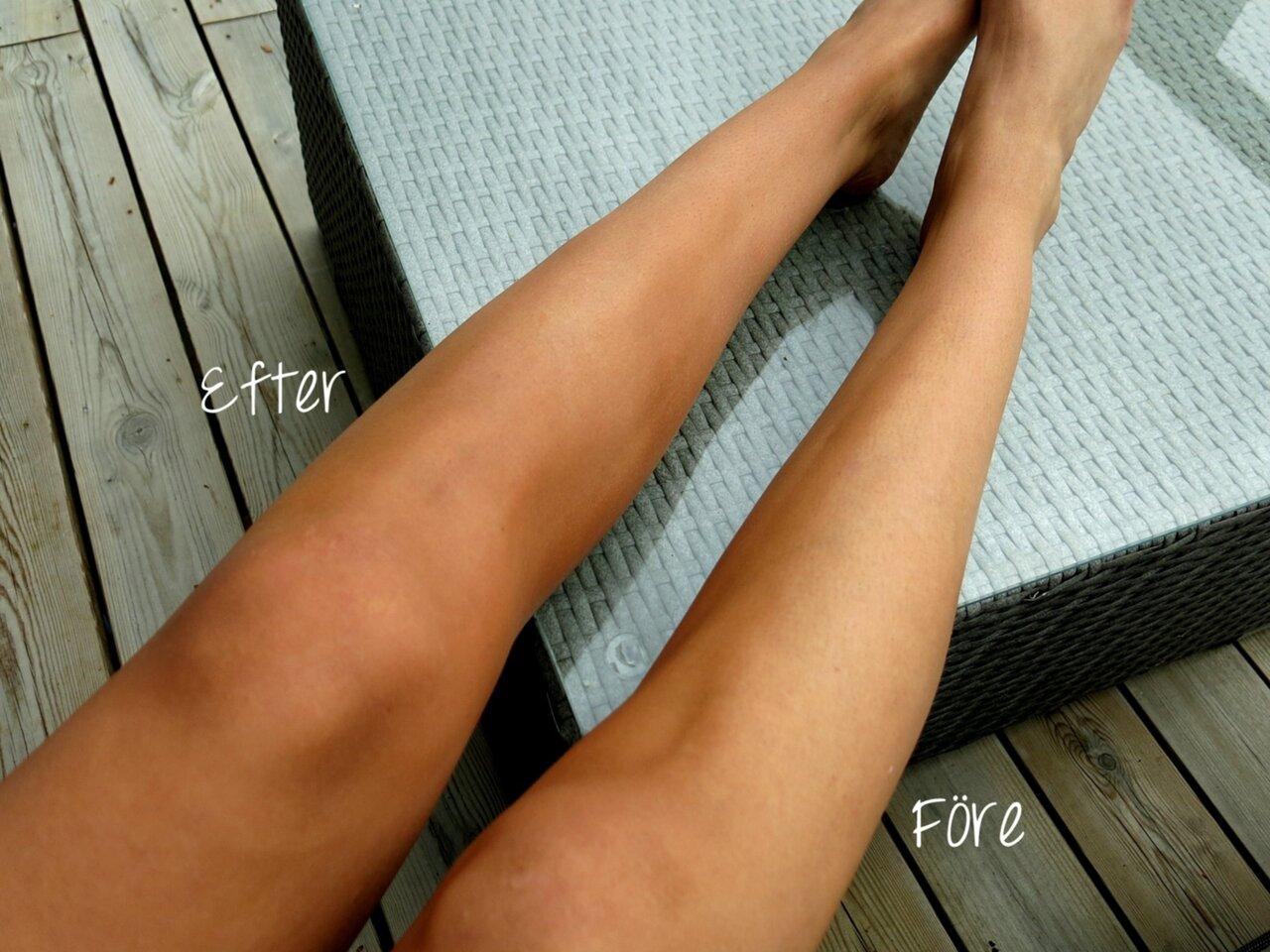 blodådror på benen